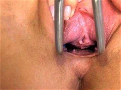 Gyno exam what gynecologists think when they see a vagina jpg 320x240