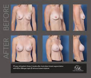 Breast augmentation in orange county finesse plastic surgery jpg 752x648