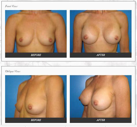 Orange county breast augmentation milind k ambe md jpg 777x718