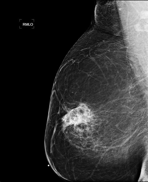 Difference between a screening and a diagnostic mammogram jpg 832x1024